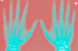 2006-03-30_-_Hands