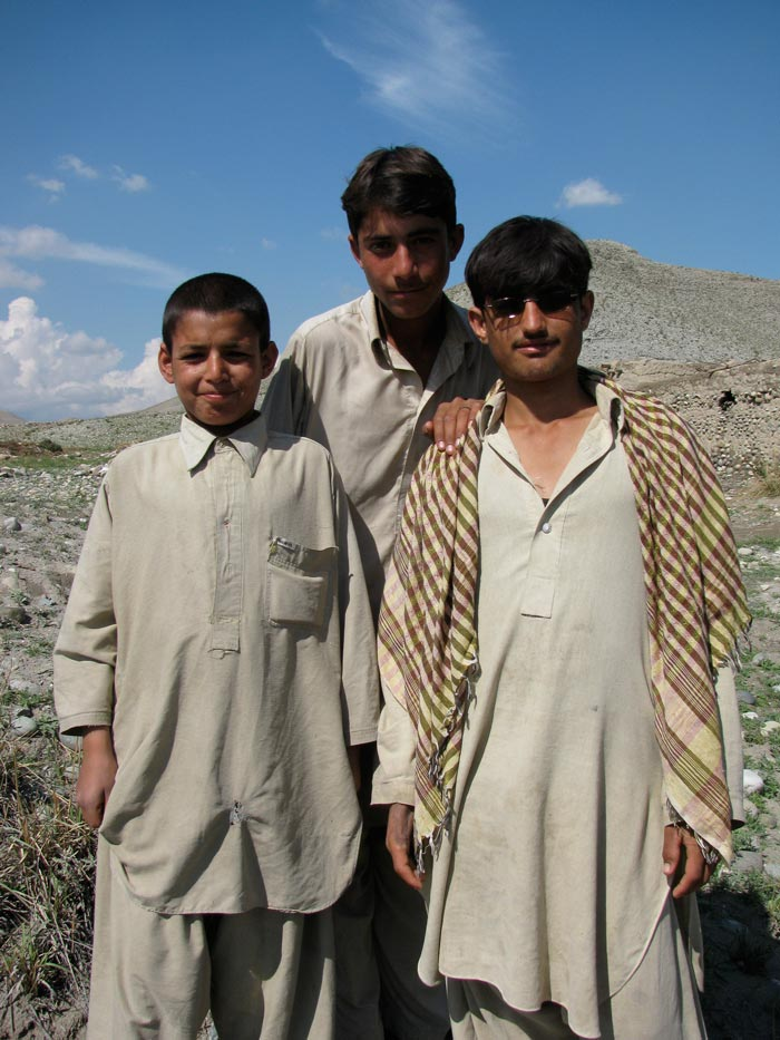 scarred_young_in_afghanistan